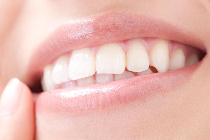 歯科用CTを用いた安全な治療